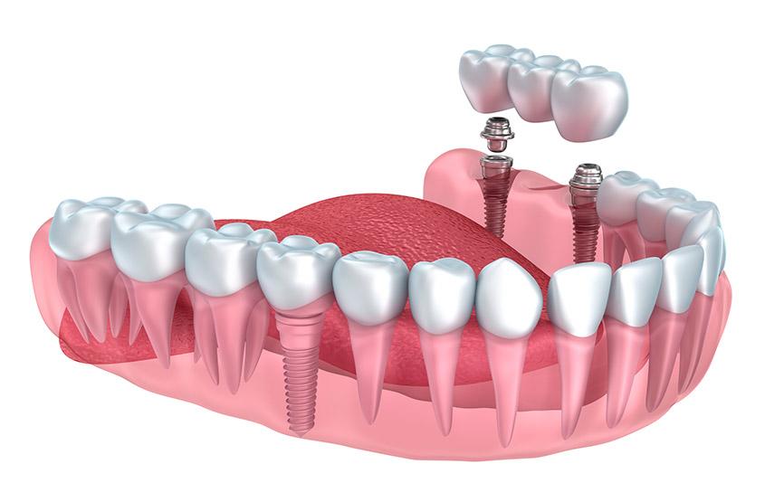 Top Dentiste Candiac | Centre de santé dentaire Candiac SC63